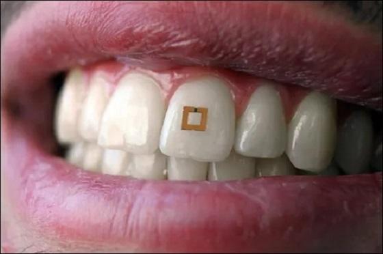 RFID标签贴在牙齿上可跟踪营养摄取